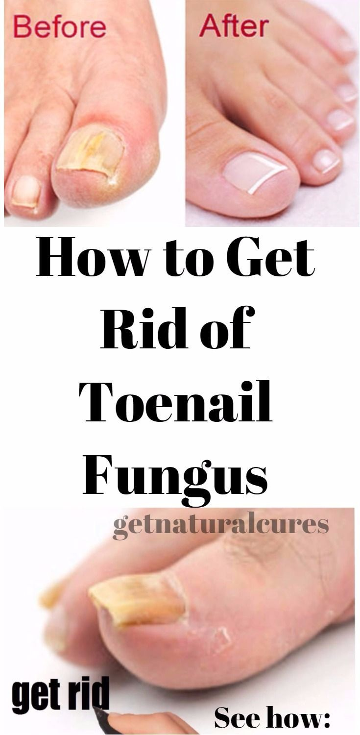 Fungal Infection Foot Natural Remedies