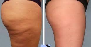 Wenn Sie Cellulite auf Ihrer Haut haben, ist dies Ihre Lösung. Ich habe sie verwendet und sie hat bei mir funktioniert – Woman To Power