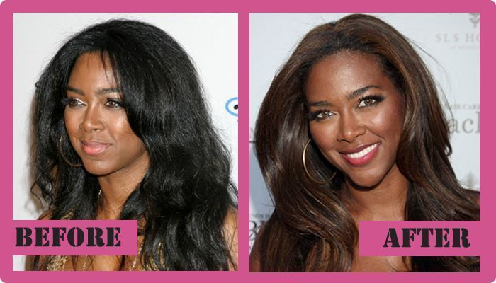 Kenya Moore Plastic Surgery Before And After Kenya Moore Plastic Surgery #Kenya …