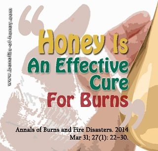 If you never know how miraculous honey can be as a first aid burn treatment, you must read this.