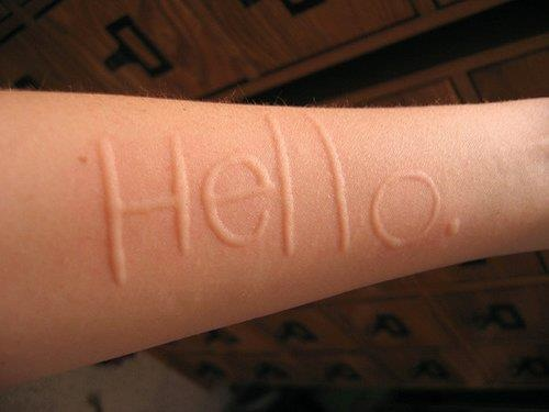 Skin writing my condition dermatographia pinterest for What does cat scratch fever look like