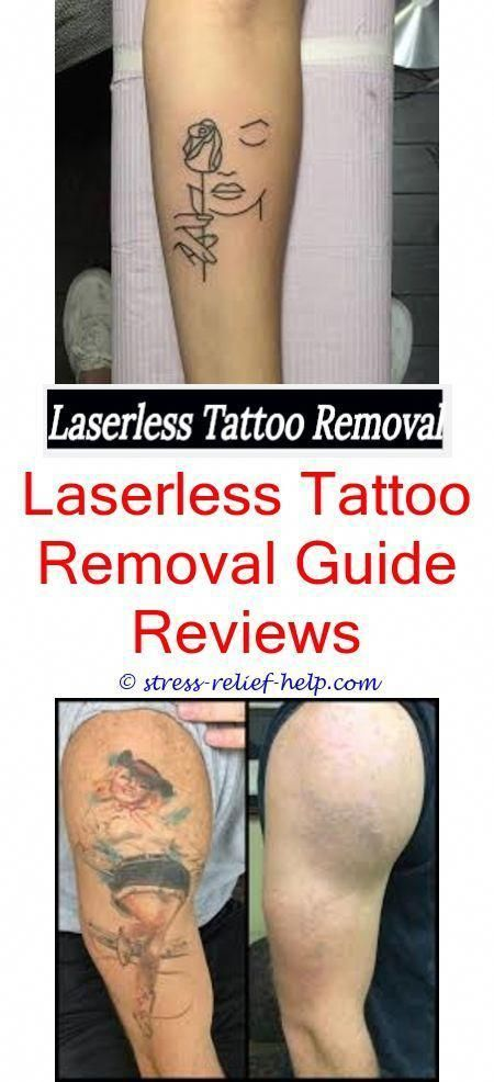 Tattoo off removal cream.How much does laser tattoo removal cost ...