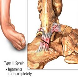 Effective Ankle Sprain Treatment