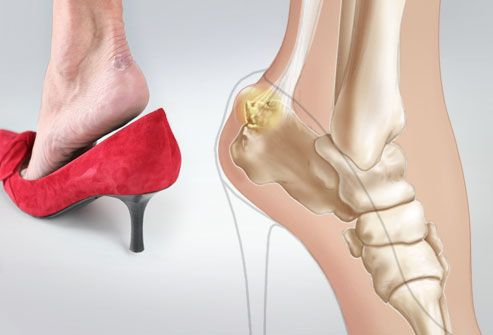 Problem: Unnatural Foot Position  Ultra-high heels force the feet into a position that puts stress on the ball of the foot.  At this critical joint, the long metatarsal bones meet the pea-shaped sesamoid bones, and the toe bones (phalanges). Too much pressure can inflame these bones or the nerves that surround them. Chronic stress to the foot bones can even lead to hairline fractures.