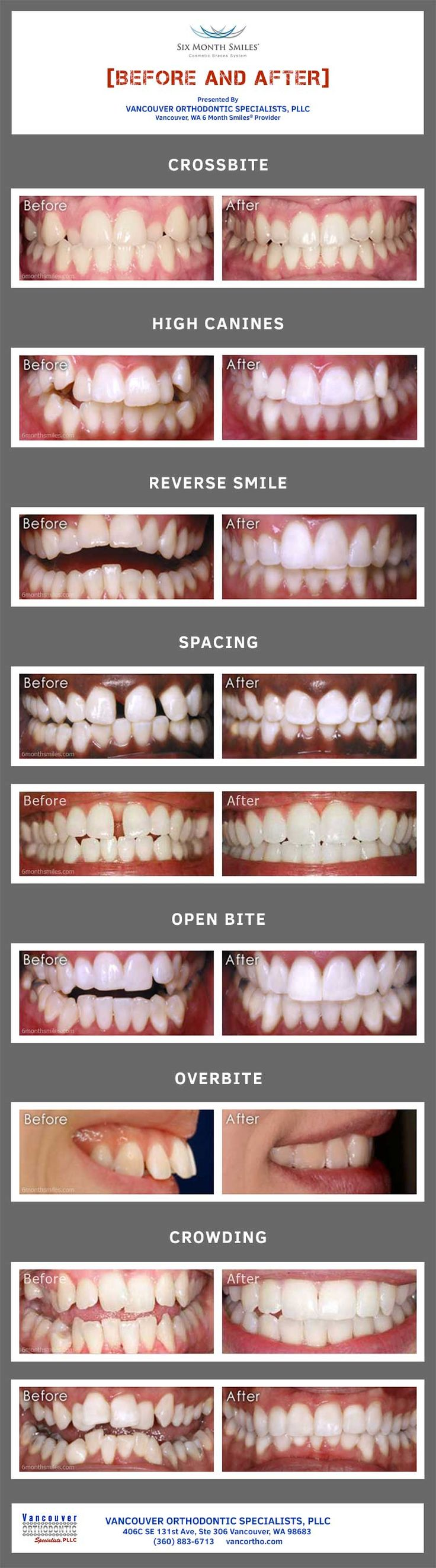Before and after photos of 6 Month Smiles users.