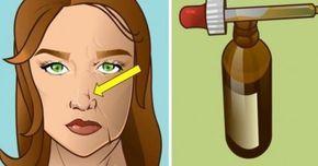 Πολλοί άνθρωποι σήμερα επιθυμούν να φαίνονται νεότεροι, αλλά με ενέσεις Botox που κοστίζουν $ 350 έως $ 500 για κάθε περιοχή που εγχύθηκε, σύμφωνα με το Do