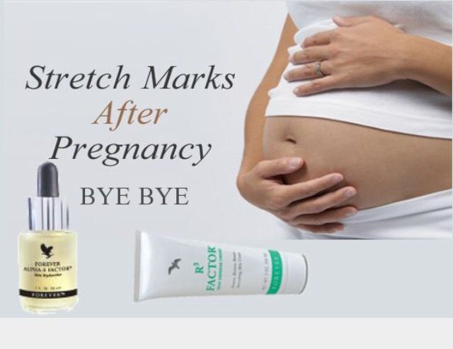 Aloe care for stretch marks and scars