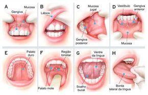 Câncer de boca