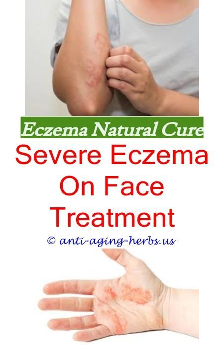 What shampoo is good for eczema Eczema military waiver Best over the