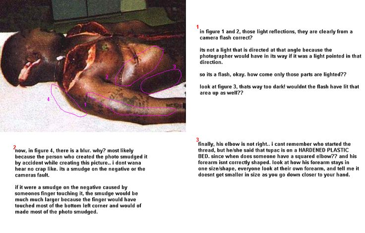 Tupac Dead Body | Left Eye Dead Body Autopsy Gallery for aaliyah dead body