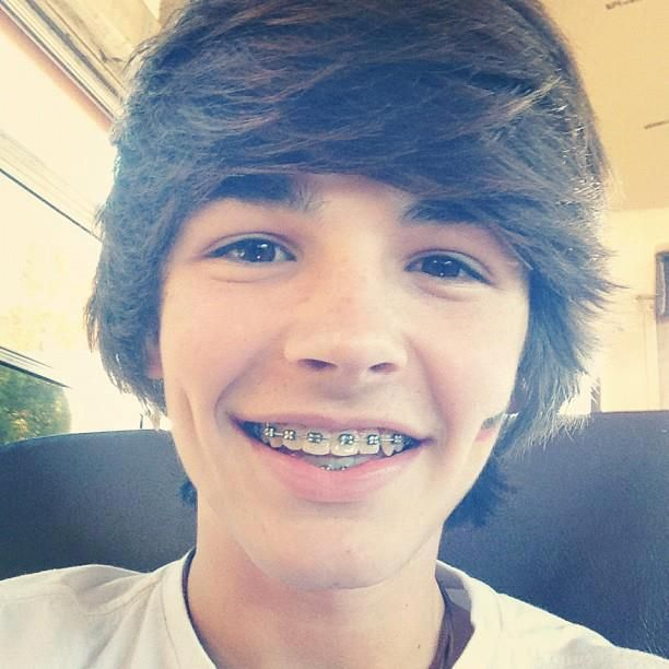 Hot guys with braces