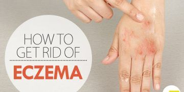 What Can You Use Natural Instead Of Cymbalta