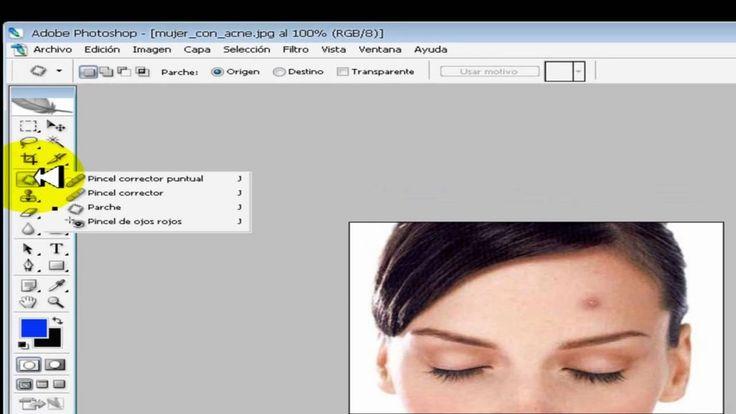 tutorial phtoshop quitar marcas de acne - http://solucionparaelacne.org/blog/tutorial-phtoshop-quitar-marcas-de-acne/