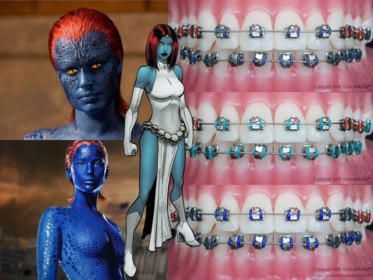 #Marvel mondays #Mystique #RavenDarkholme #xmen #Mutant #Mutants #orthodontics #orthodontist #braces #ортодонт #ортодонтия #brackets  #ortodoncia #ortodontia #ortodontista #ortodoncista #marvelcomics #marveluniverse #colour #bracescolors #cosplay #brotherhoodofmutants #xmen #xmenapocalypse #shapeshifter
