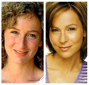 Jennifer Grey's nose job after and before http://www.bestnosejob.com/jennifer-grey-nose-job.html