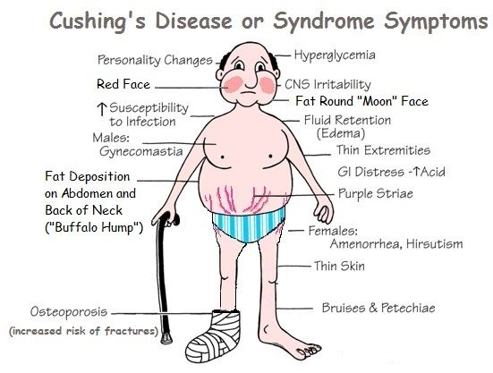 cushing's syndrome | Photograph of the reddish-purple