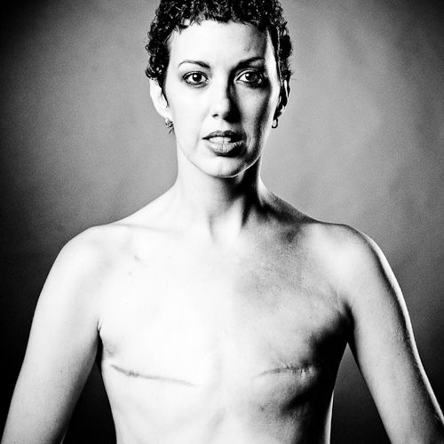 """The Scar Project: """"Breast Cancer is not a Pink Ribbon"""" - So powerful."""