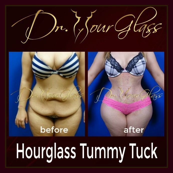 She looks so perfect after undergoing one of the famous plastic surgery interventions called Hourglass Tummy Tuck procedure. This method will eliminate excess fat and skin on your abdominal area while reshaping your body into an hourglass.