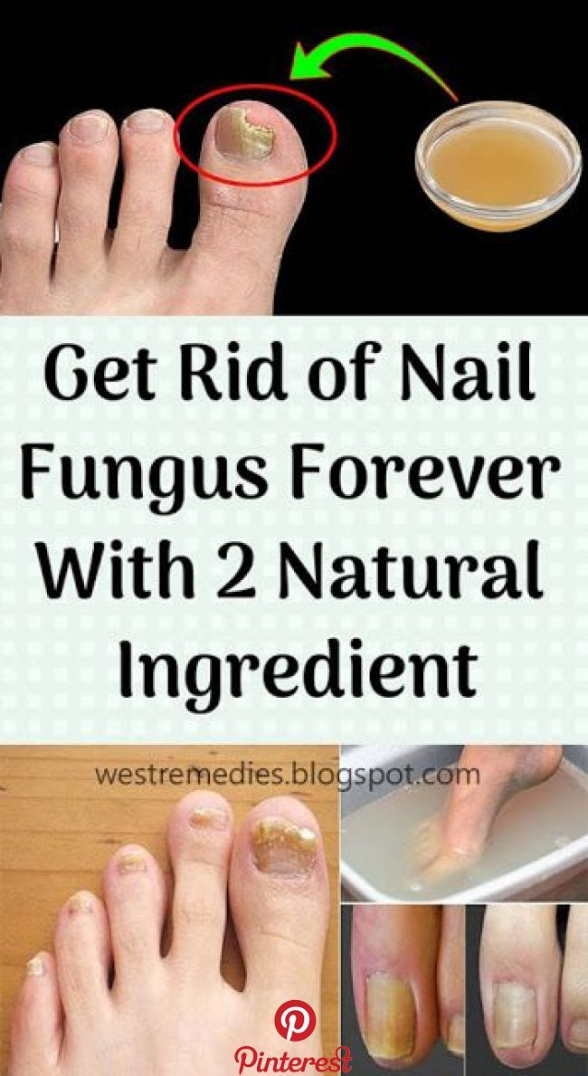 Get Rid Of Nail Fungus Forever With 2 Natural Ingredient Nail Fungus Toenail Fungus Remedies Toenail Fungus Treatment