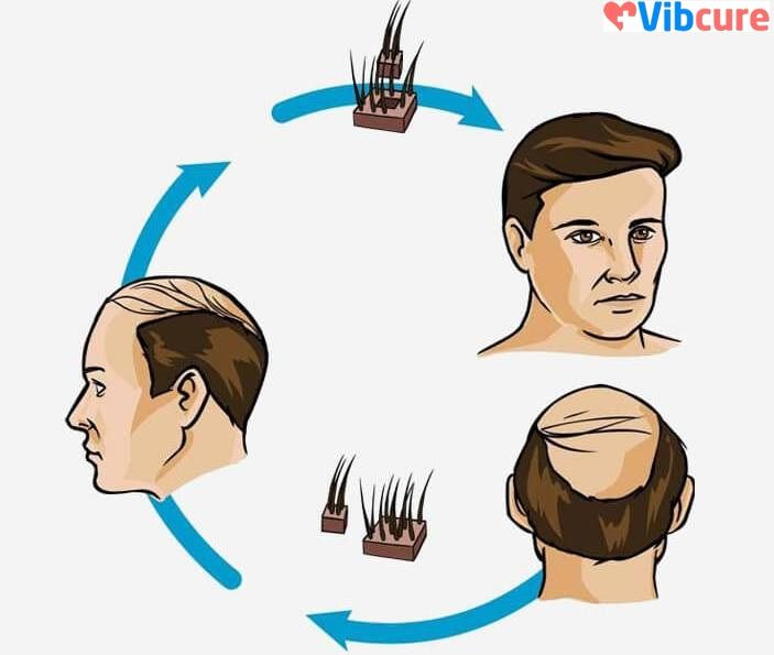 Vibcure offers various cosmetic surgeries such as hair transplant, liposuction, rhinoplasty at best rates in India. You can find the best comparison for hair transplant cost all over India on our website & thus choose for the apt hair restoration surgery. Explore more at: https://vibcure.com/specialities/Cosmetology