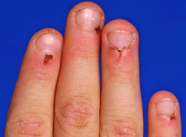 periorbital heliotrope rash in Dermatomyositis ...
