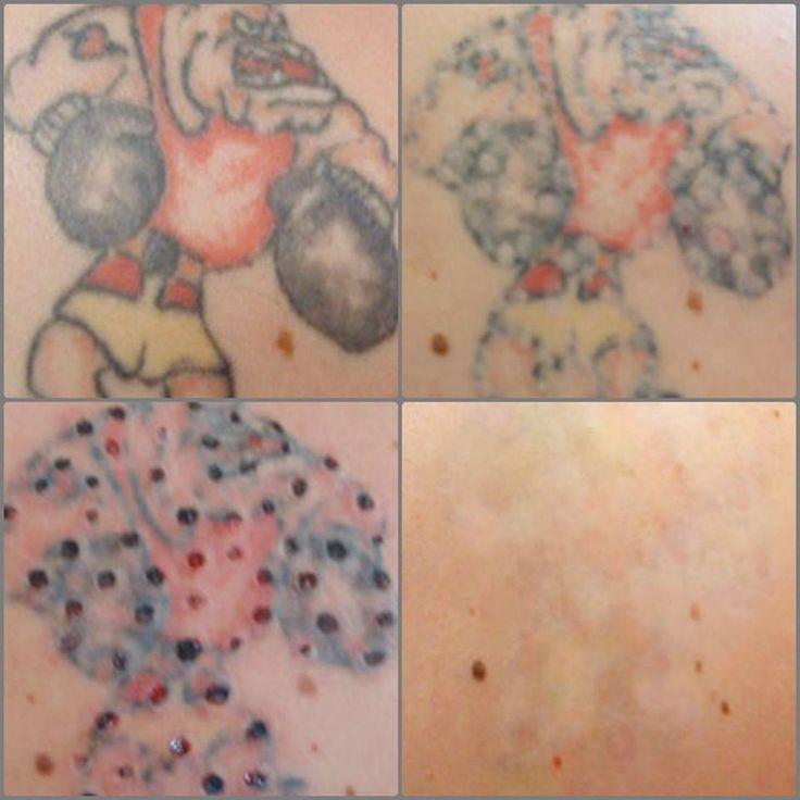 12 best tatt2away clinics images on pinterest tattoo for Looking glass plastic surgery tattoo removal