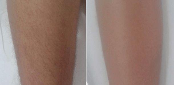 Você tem excesso de pelos nas pernas, buço, braços, barriga etc. e se incomoda com isso ? Sente vergonha de se mostrar por conta desse excesso de pelos ? Queria acabar definitivamente com