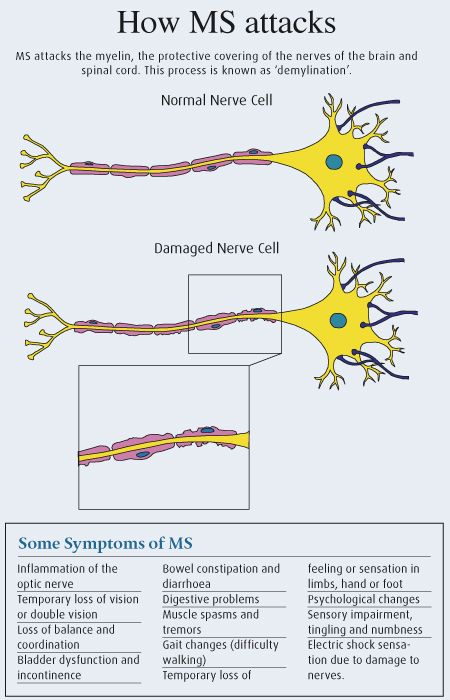 ♥ Explains how the nerves are damaged in MS.. and why we struggle to do everyday tasks.   #health #MS