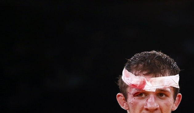 Russia's Alan Khugaev looks on bleeding during his combat at the Men's 84Kg Greco-Roman wrestling at the ExCel venue during the London 2012 Olympic Games