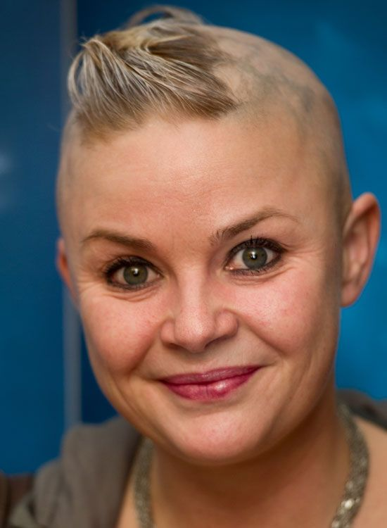 Bald Hairstyles - Shaved Head Gail Porter once again with a fully shaved head and a small patch of hair on the top. There is no need to style up the hair. Just let it stay as it is, and you are all set to be the real attention-grabber.