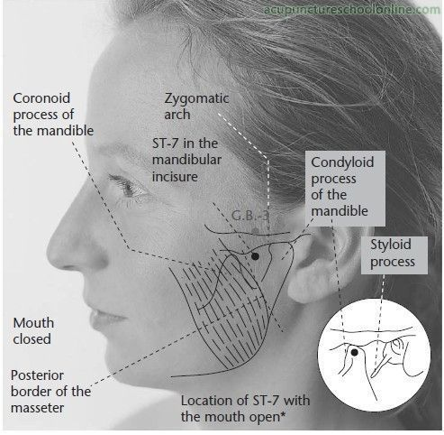 acupuncture for headaches nice guidelines