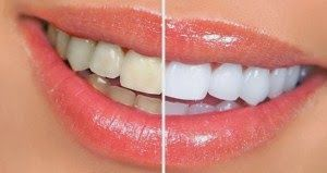 http://ayokesehatan.blogspot.com/2014/05/cara-memutihkan-gigi-secara-alami.html