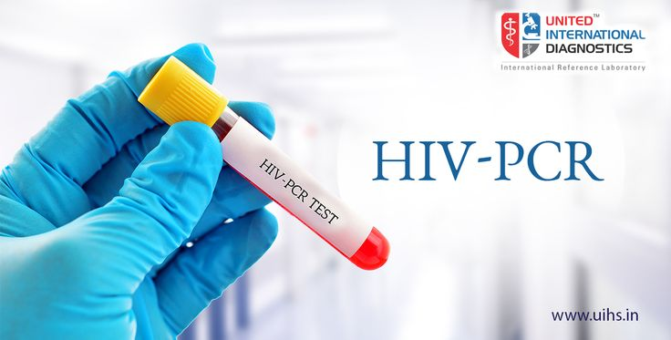Polymerase Chain Reaction (PCR) is very precise and most accurate laboratory test for the diagnosis of HIV infection. This test may be performed few days or weeks after exposure to HIV.