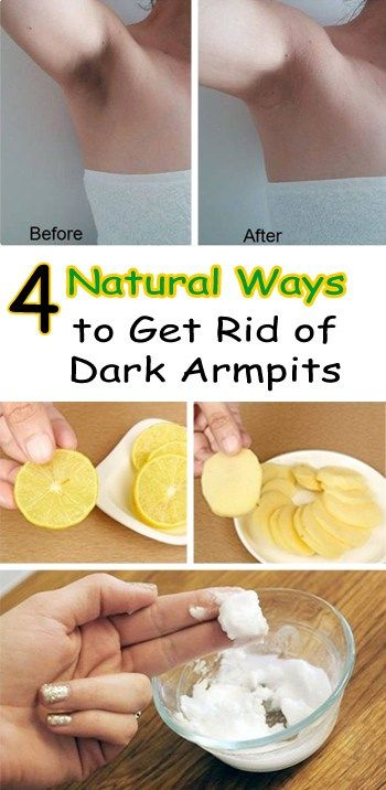 4 Natural Ways to Get Rid of Dark Armpits