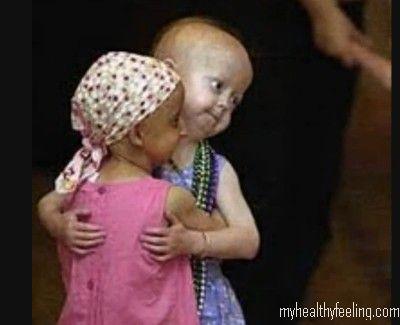 Progeria Pictures, Progeria Facts, Disease-Symptoms, Treatment
