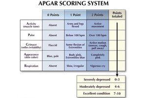 Apgar Scoring of Newborns - EMSWorld.com
