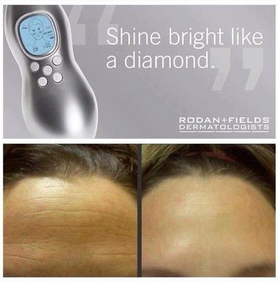Rodan And Fields Before And After   See more awesome results and learn about the products : https://hbeeman.myrandf.com