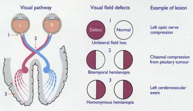 Stroke - vision disturbances | nursing | Pinterest | Other ...