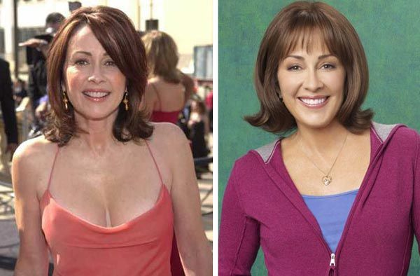 Patricia Heaton Plastic Surgery Before & After - http://plasticsurgerytalks.com/patricia-heaton-plastic-surgery-before-after/