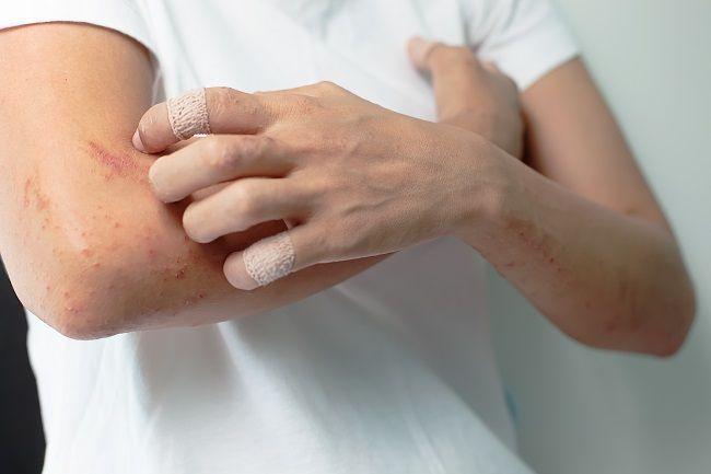 Ekzém: Ako ho môžete liečiť jablčným octom