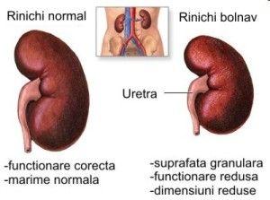 Rinichi cu nefropatie diabetică