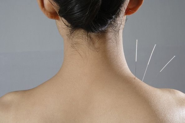 Why Celebs Love Acupuncture—And You Might, Too - Health Diet Fitness - StyleBistro