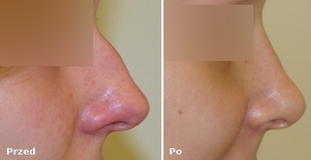 Operacja nosa przed i po