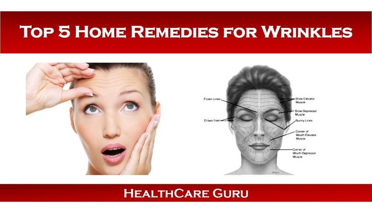 Top 5 Home Remedies for Wrinkles | Home Remedies for Wrinkles
