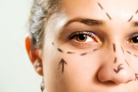 Laser Treatment for Age Spots