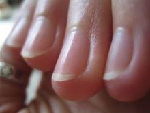 Comment soigner les ongles striés ?