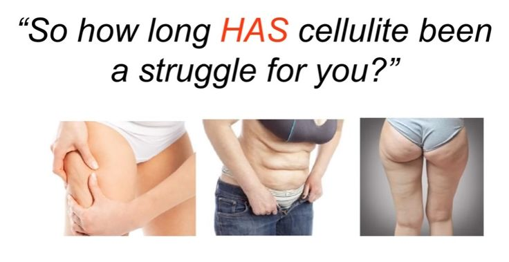 Cellulite Destroyer Book Review: http://justforwomens.com/cellulite-destroyer-system-review/