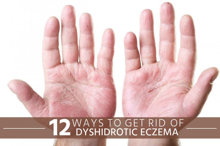 Baking soda is also a very effective remedy for treating dyshidrotic eczema. Make a solution of baking soda. Soak your hands and feet in this solution for about 15 minutes every day to get rid of dyshidrotic eczema.