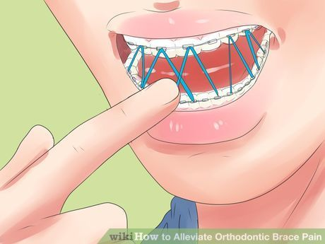 Image titled Alleviate Orthodontic Brace Pain Step 11