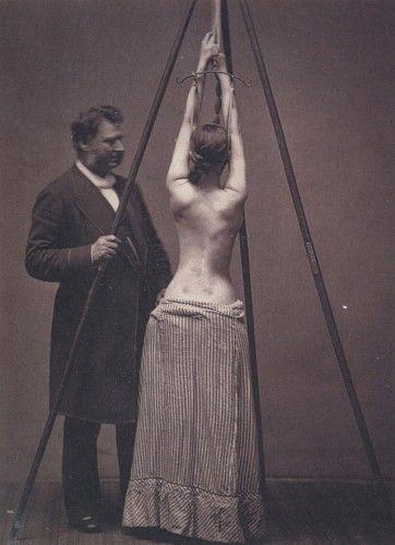 Esse era o modelo de tratamento para escoliose utilizado por Lewis Sayre.